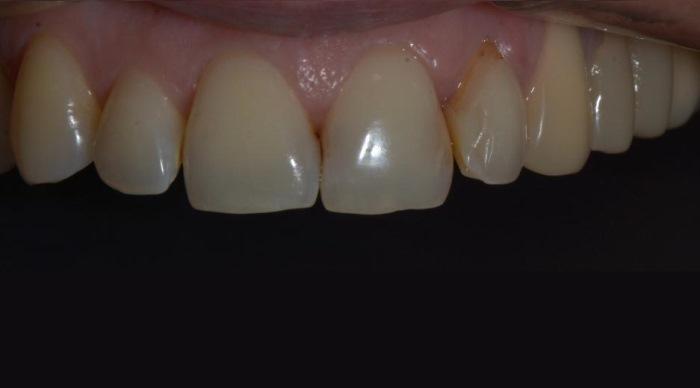 Устранение эстетического дефекта зуба 2.1
