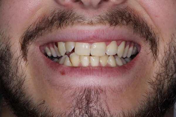 Когда 1 зуб играет реально большую роль