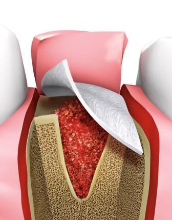 Тромбоцит - обогащенный фибрин для армированного восстановления костной ткани