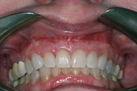 Лечение десневой улыбки: удлинение коронок и репозиция губы