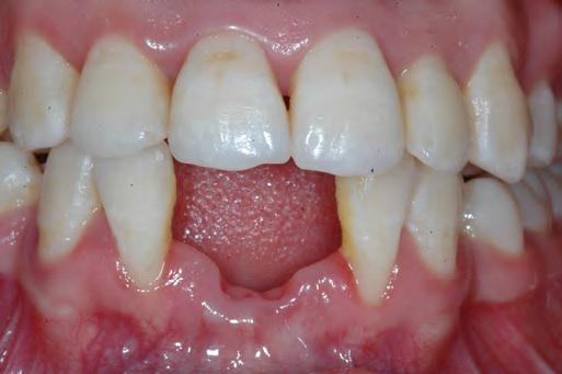 Стоматологическая реабилитация резорбированных центральных резцов