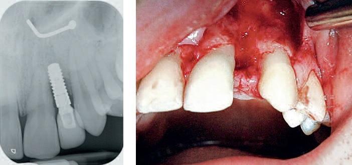 Восстановление бокового резца верхней челюсти, пораженного аплазией
