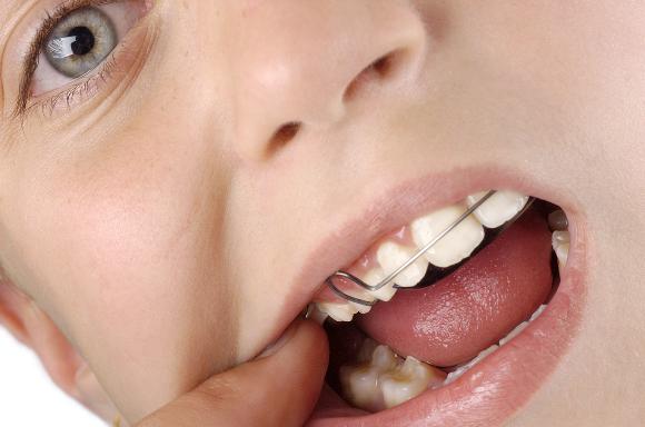 Лишний вес может быть причиной сложностей с ортодонтическим лечением у детей