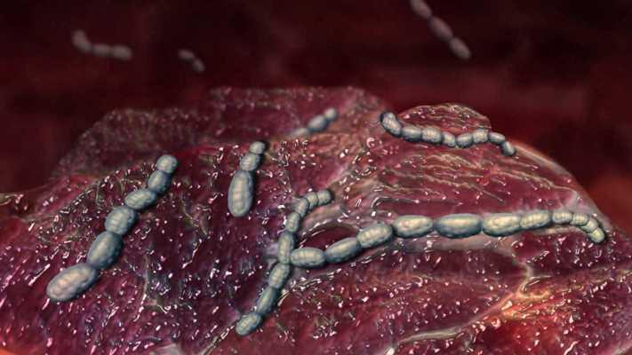 Ученые из Финляндии применили метод фотодинамической терапии с использованием волн двух спектров для уничтожения патогенных бактерий ротовой полости