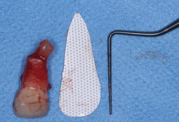 Цитоконус - консервативное лечение дегисценций вестибулярной стенки лунки перед имплантацией