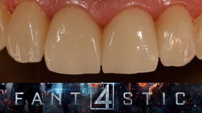 Изготовление керамических виниров E.max для замены старых композитных реставраций на резцах верхней челюсти