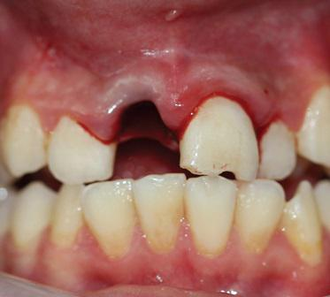 Отстроченная реплантация травмированных зубов