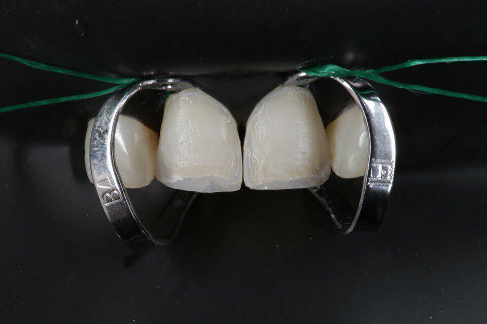 композитные виниры без обточки зубов
