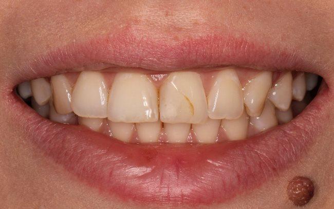 Переделывание реставрации переднего зуба с исправлением допущенных недочётов