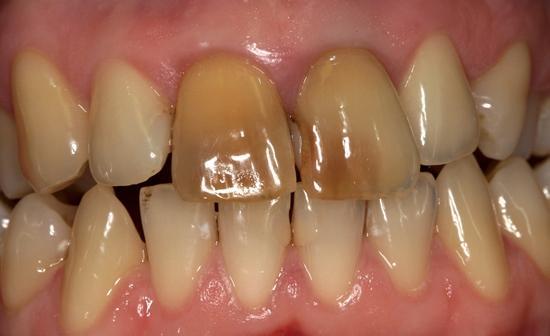 Отбеливание девитализированных зубов