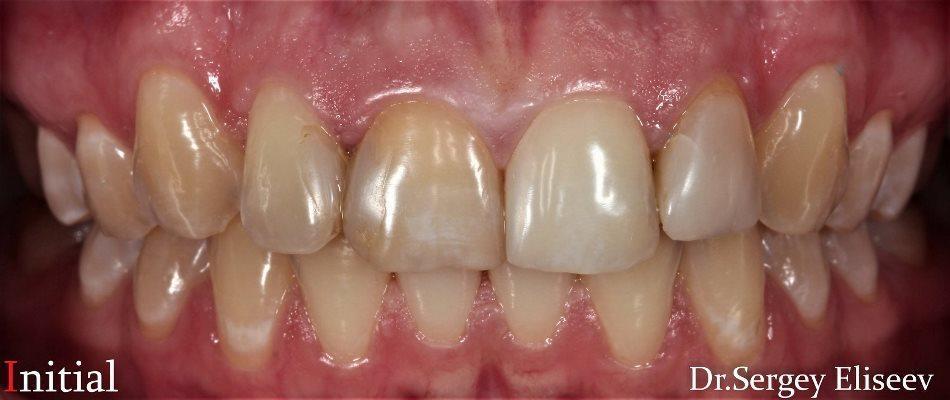 Адгезивные керамические реставрации 4-х резцов верхней челюсти