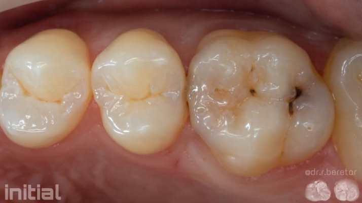 Кариес дентина зуба 2.5, 2.6