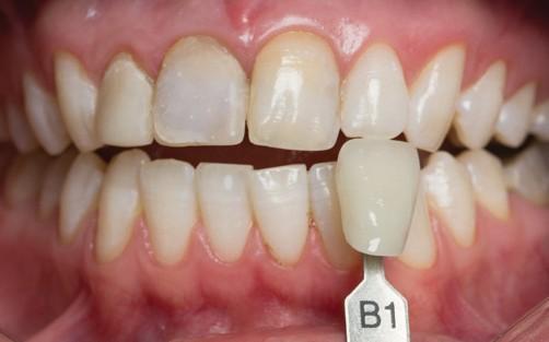 B1 цвет зубов