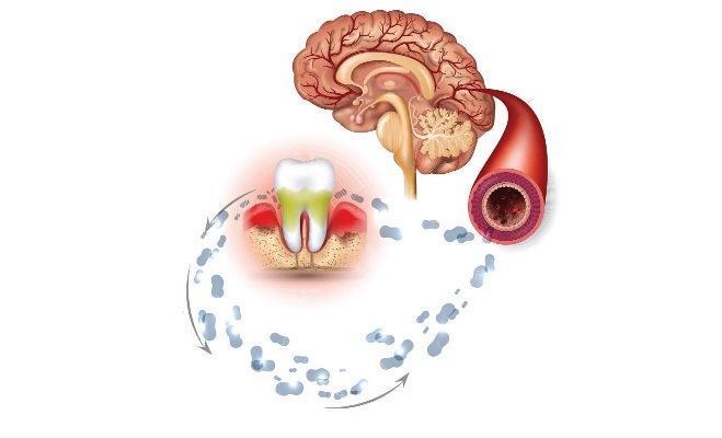 Регулярное лечение и проверка состояния здоровья пародонта снижают вероятность инсульта