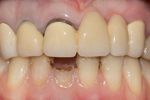Реставрация 41 зуба как один из подготовительных этапов к протезированию