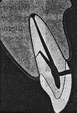 Характерное расположение коронково-корневого перелома