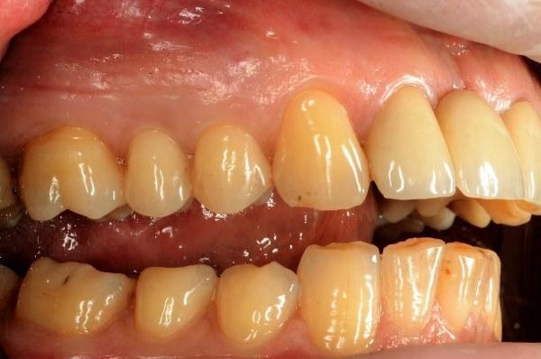 Одномоментная имплантация и немедленная нагрузка в области 24 зуба