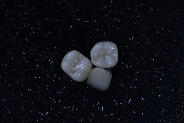 Микропротезирование зубов. Изготовление керамических накладок согласно ИРОПЗ.