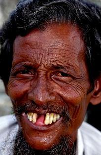 щербина, зубы, пирсинг языка