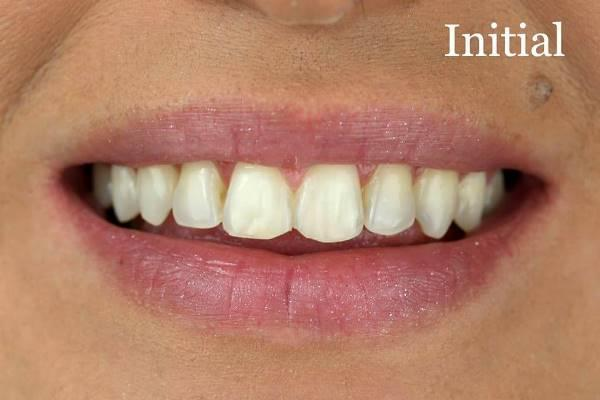Несколько штрихов для идеальной улыбки после ортодонтического лечения