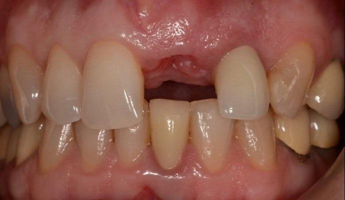Постэкстракционные лунки однокорневых зубов: классификация и протоколы восстановления