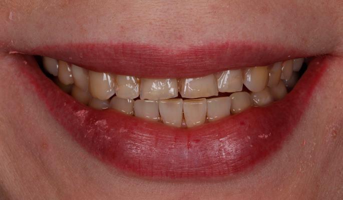 Тотальное протезирование пациента с открытым прикусом после ортодонтического лечения