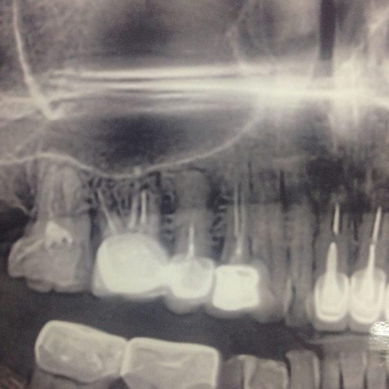 Лечение периодонтита зуба 1.5 с применением операционного микроскопа, тип V по Vertucci