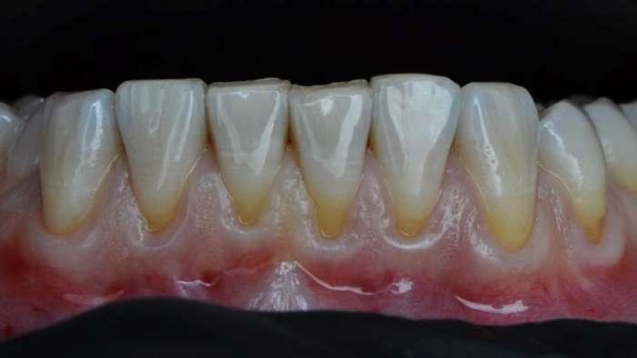 Устранение рецессий в области центральных зубов на нижней челюсти