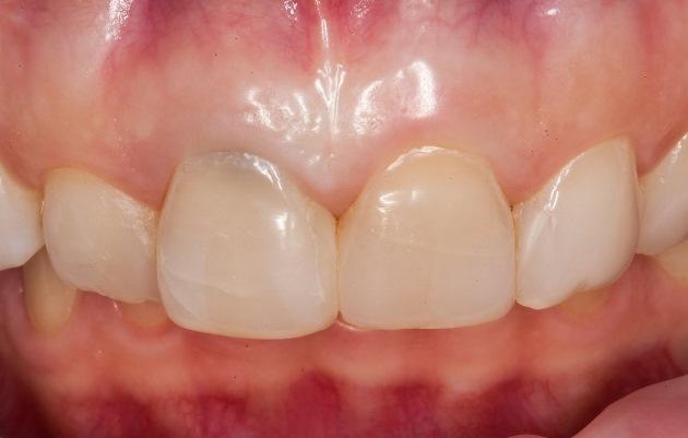 Передние зубы за 2 дня