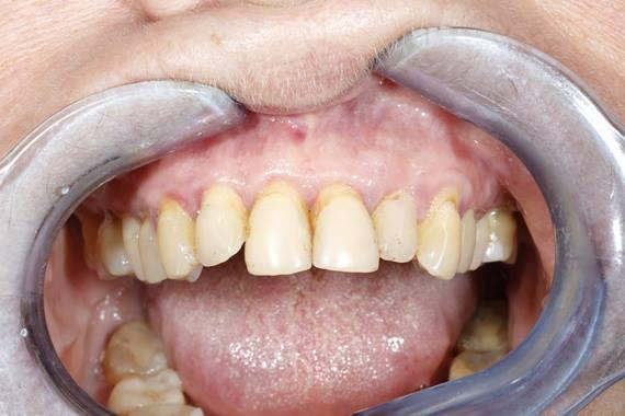 """Немедленное временное протезирование с опорой на дентальные имплантаты по концепции """"Weld-on-5"""" после тотального удаления зубов"""