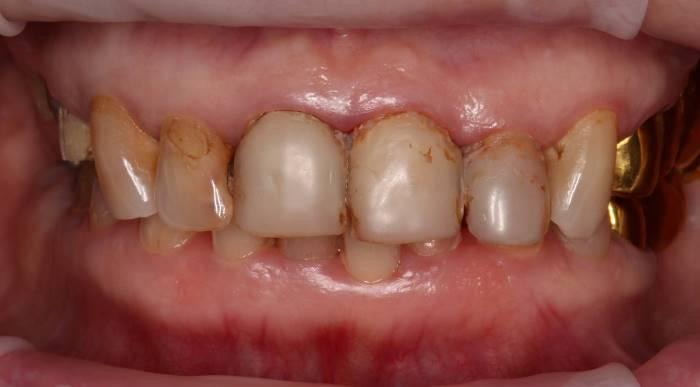 Почти тотальная реабилитация пациентки коронками из диоксида циркония и винирами E.max на зубах