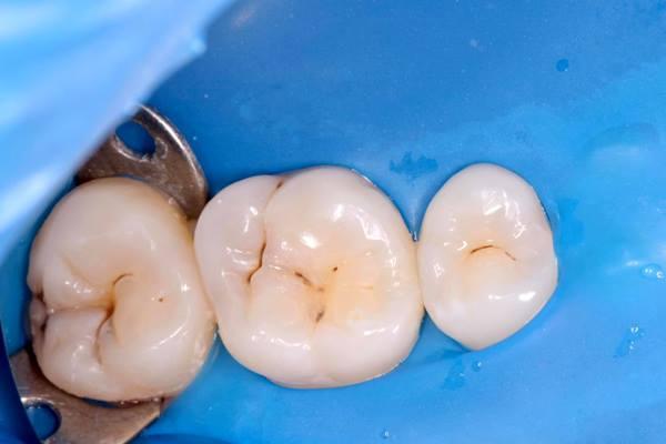 Прямая реставрация зубов 1.6, 1.7