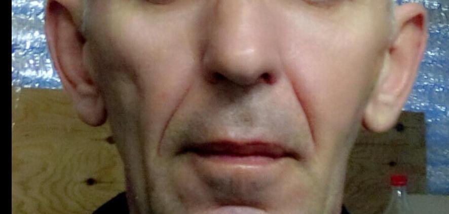 Левая щека похудела
