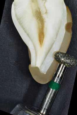 Минимально инвазивная стоматология: техники сохраняющие ткани зуба