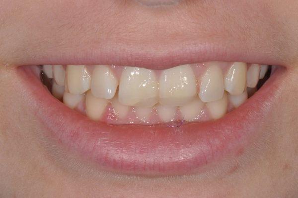 Отбеливание Zoom 4 и прямая реставрация зубов 11, 21