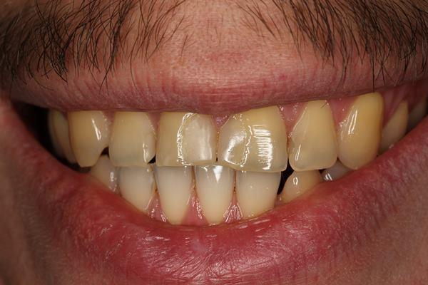 Лечение кариеса 4 центральных зубов
