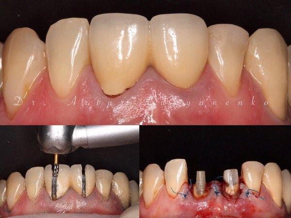 Повторное протезирование сильно разрушенных зубов