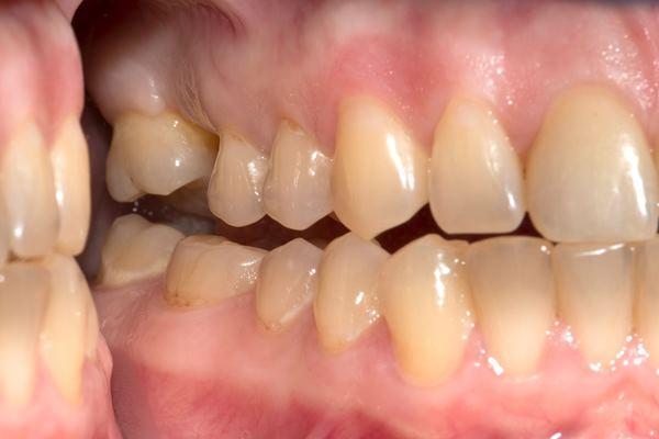 Имплантация при ортодонтической патологии