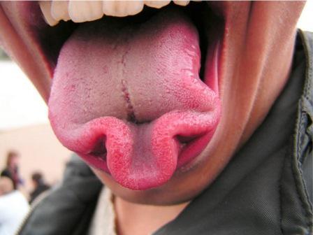 Ученые из Индии придумали систему для диагностирования болезней по внешнему виду языка