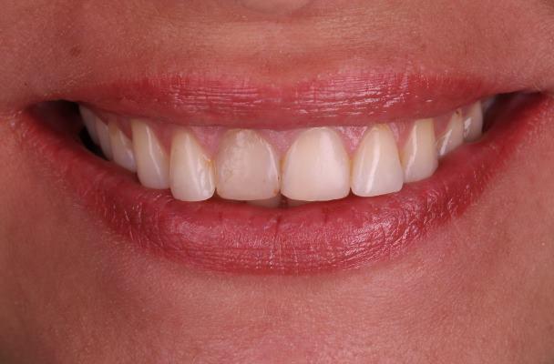 Изменение улыбки с помощью четырёх керамических реставраций