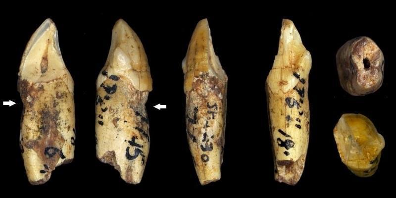 У древних людей наблюдалась эрозия и стираемость зубной эмали, несмотря на то, что в их рационе не было сладких продуктов и кислотосодержащих напитков