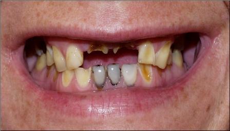 Утрата тканей зуба: эрозия