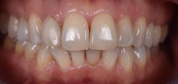 Прямая композитная реставрация зуба 1.2 материалом Estelite Asteria