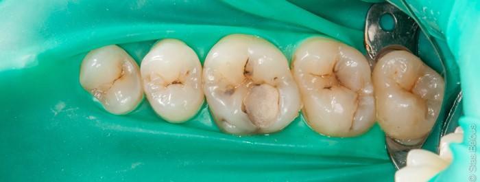 Как должна выглядеть реставрация зуба?