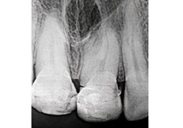 Лечение двухкорневого центрального резца: возможности томографии