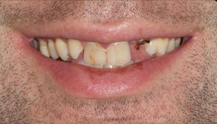 Комплексная реабилитация полости рта