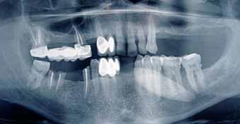 Необычно большой слюнной камень поднижнечелюстной слюнной железы (746) - Хирургия - Новости и статьи по стоматологии - Профессиональный стоматологический портал (сайт) «Клуб стоматологов»