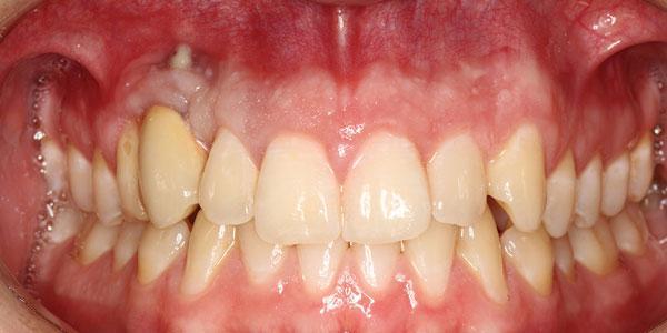 Восстановление и реконструкция участка неудачной имплантации в области клыка верхней челюсти