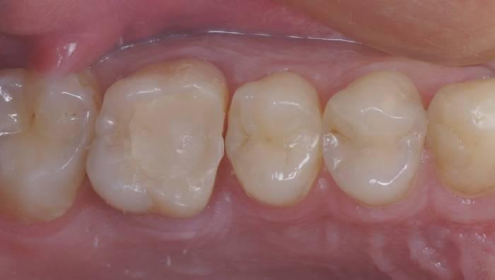 Композитная реставрация бокового зуба