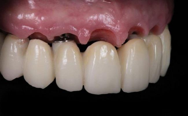 Системный подход планирования реабилитации беззубой верхней челюсти